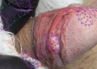 condilomatosis vph