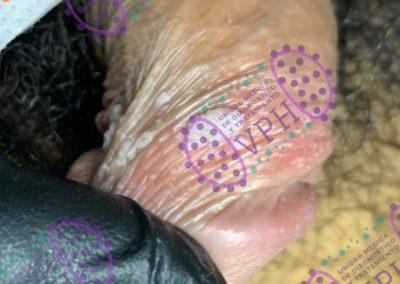 verruga-genital-acetoblanca