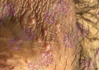 verrugas-genitales-clinicas